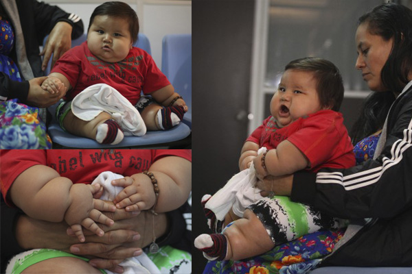cdff39dad4d Πήραν από την μητέρα του το μωρό – γίγας για να το σώσουν ...